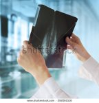 stock-photo-doctor-with-mammography-292061516